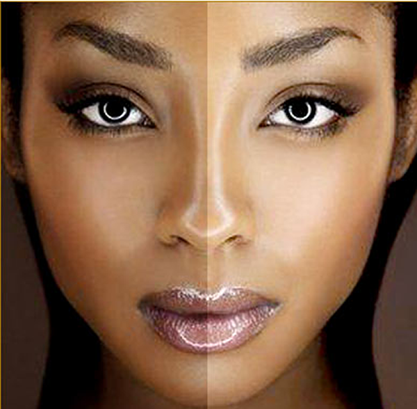If You Are Loopy About Pores and skin Lightening Lotions, You Ought to Learn These 5 Info Skin bleaching3