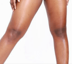 How To Get Rid Of Black Knees And Elbows