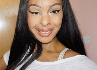 Naomi Oni Shares Acid Attack Story