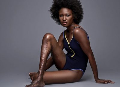 Berlange Presilus Becomes Model With An 'Ugly' Leg
