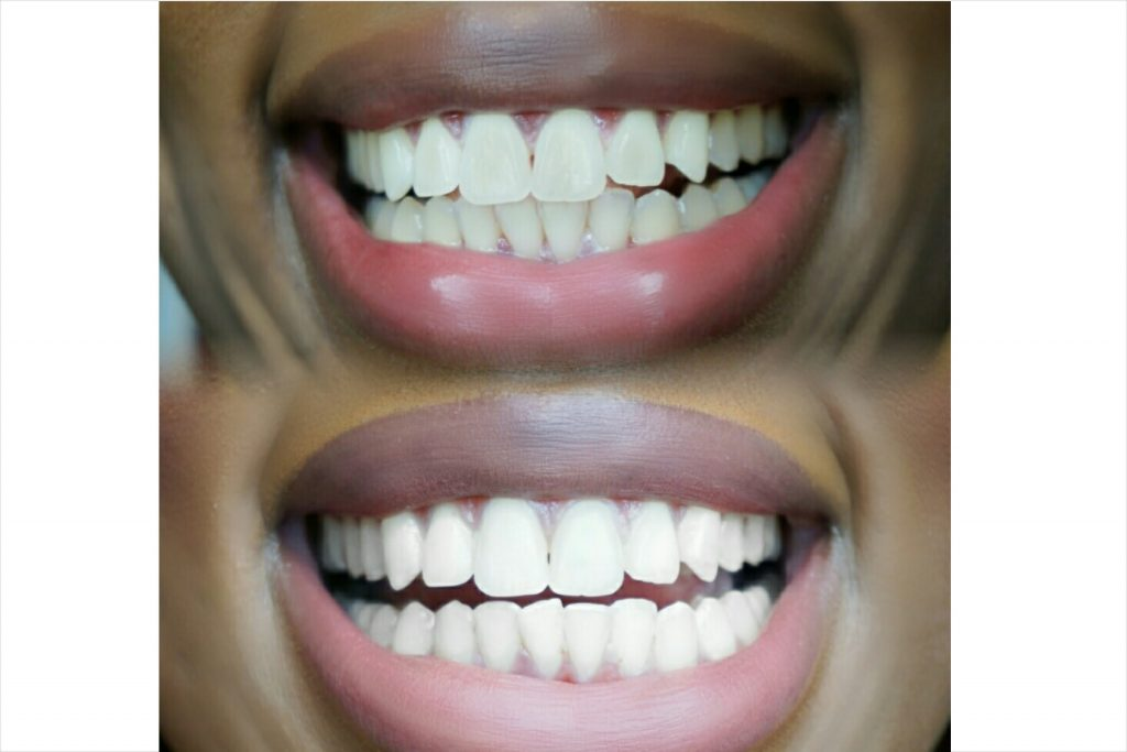 bentonite clay for teeth whitening