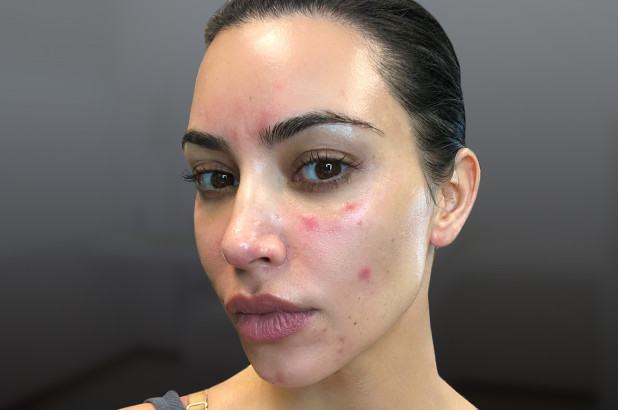 This Is The Rare Skin Disease Reality Star, Kim Kardashian Is Struggling With
