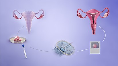 everything to know about ivf